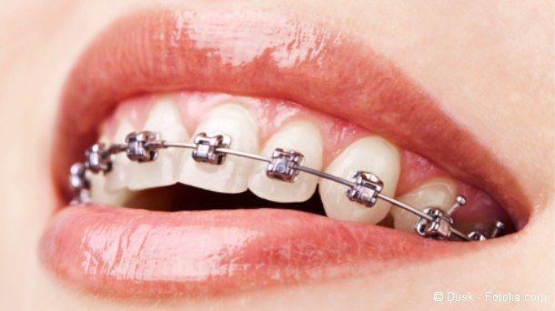 dinger zu reinigung der zahnspange